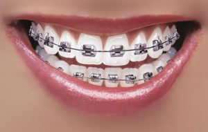 braces-teeth-cost
